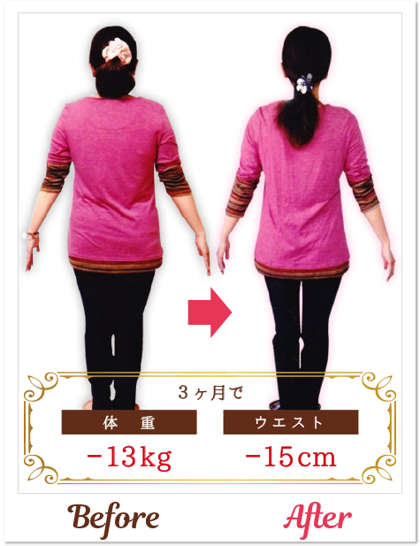Mさん/30代-02